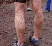 Die Beine von ?